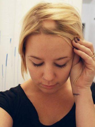 Sanatate - Alopecia areata