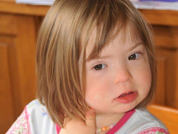 Stiri - Ce inseamna de fapt Sindromul Down