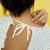Sanatate - Eczema-cauze si tratament