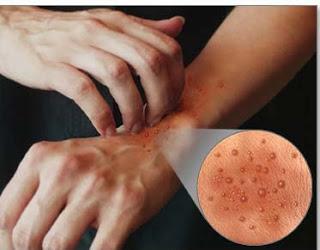 Sanatate - Eczema