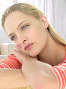 Sanatate - Lupus eritematos